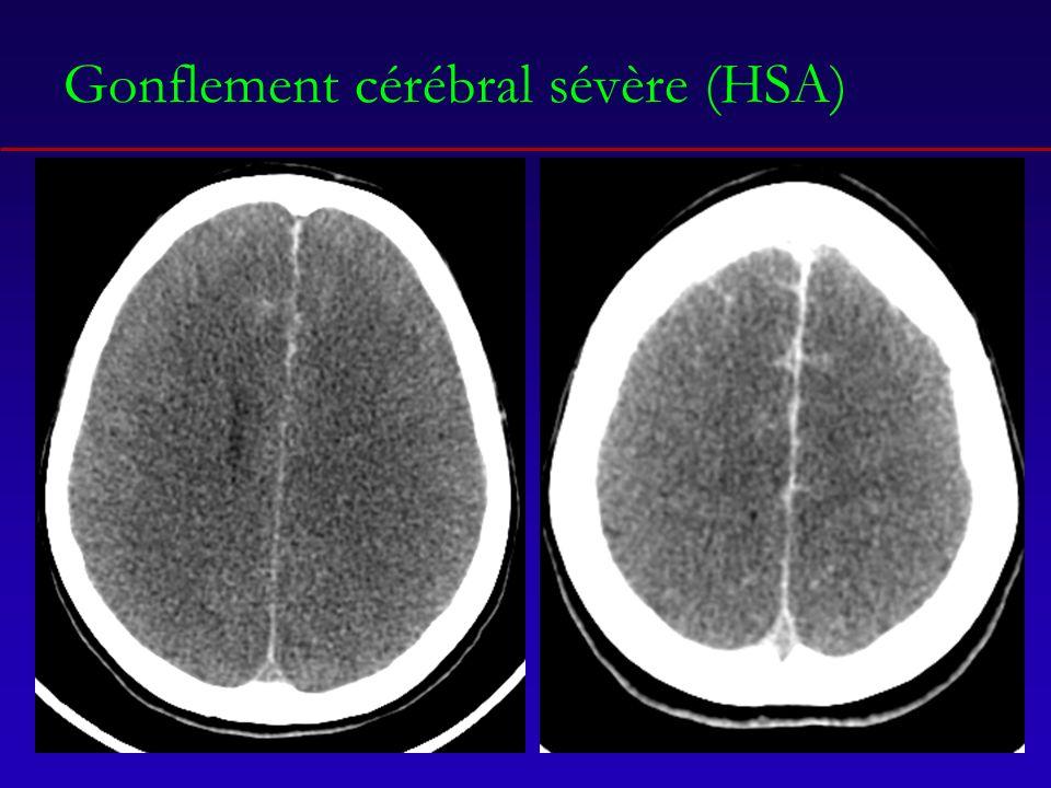 Gonflement cérébral sévère (HSA)