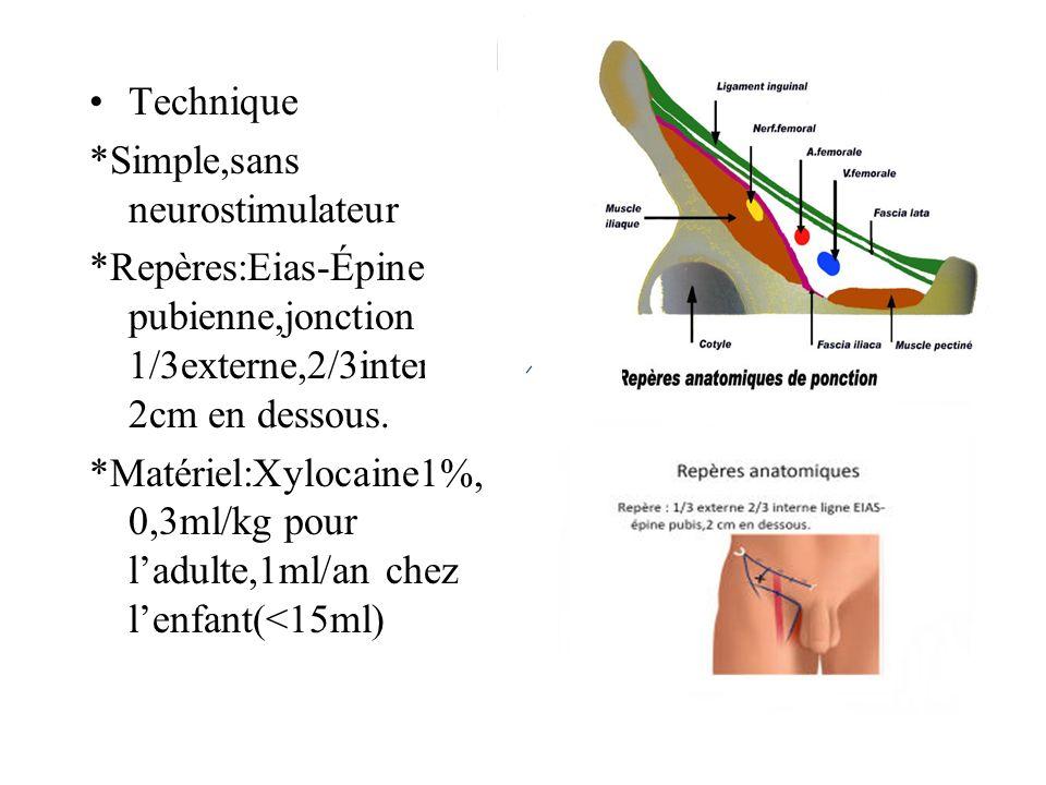 Technique *Simple,sans neurostimulateur. *Repères:Eias-Épine pubienne,jonction 1/3externe,2/3interne,2cm en dessous.