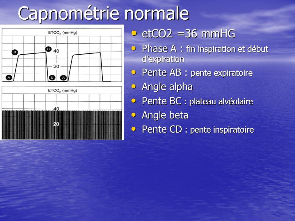 Capnométrie normale etCO2 =36 mmHG