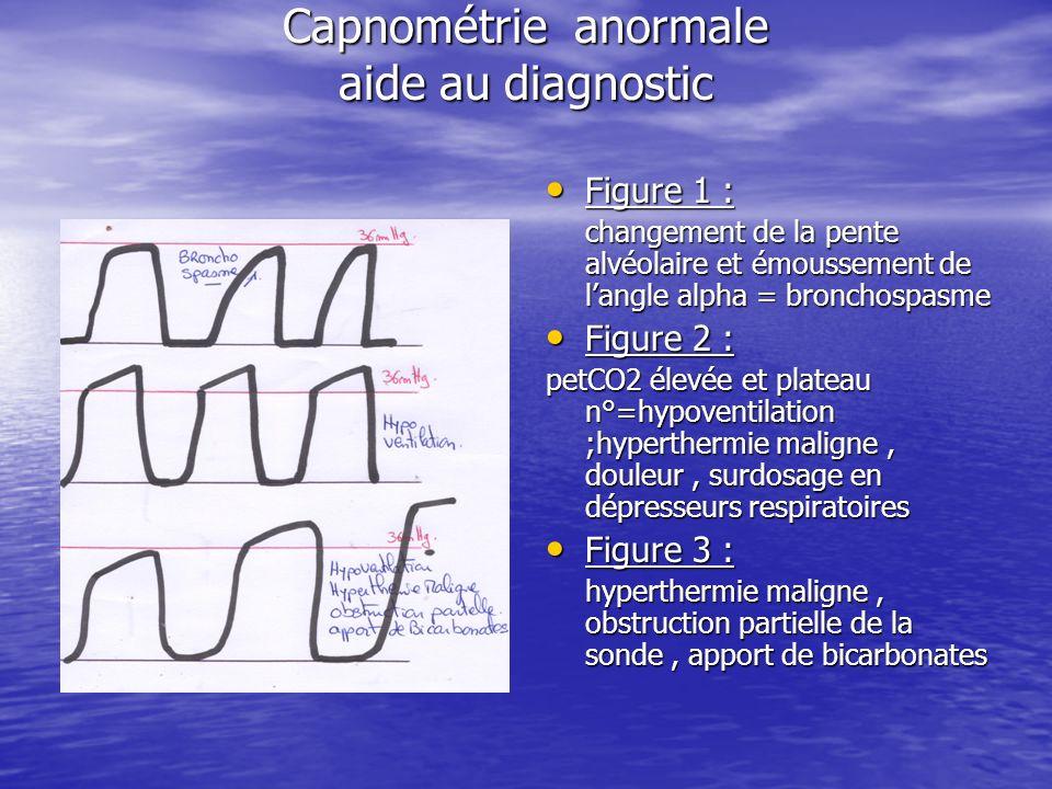 Capnométrie anormale aide au diagnostic