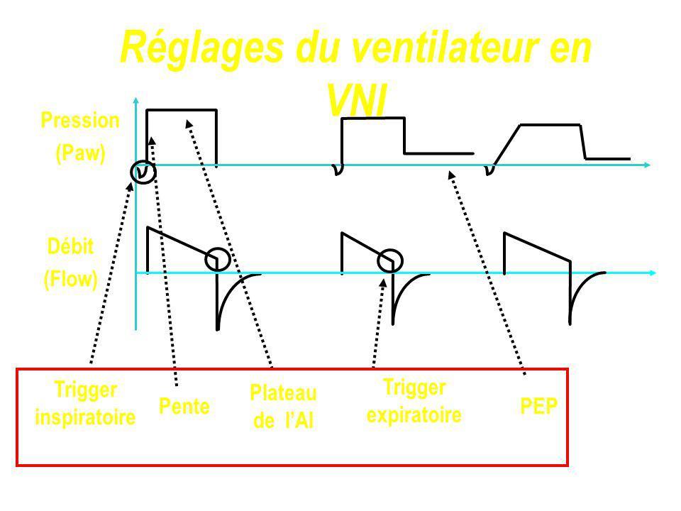 Réglages du ventilateur en VNI