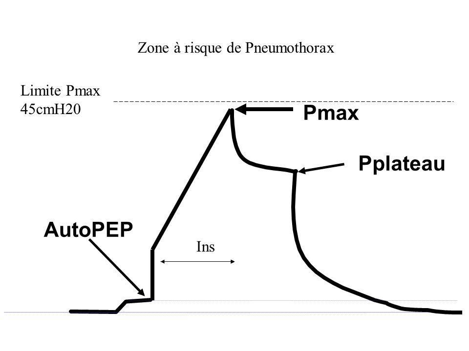 Pmax Pplateau AutoPEP Zone à risque de Pneumothorax