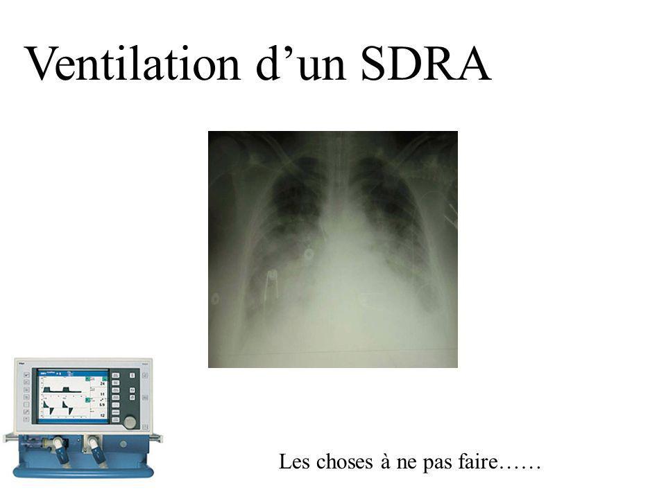 Ventilation d'un SDRA Les choses à ne pas faire……