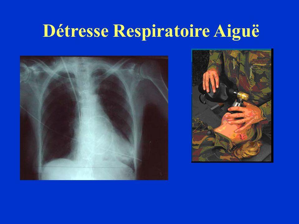 Détresse Respiratoire Aiguë