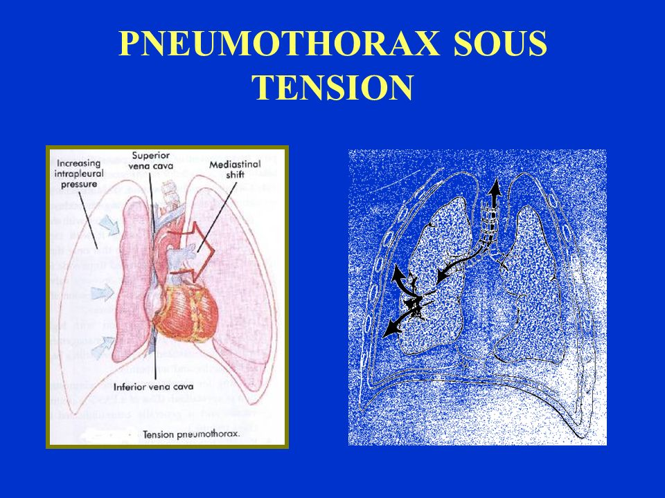 PNEUMOTHORAX SOUS TENSION