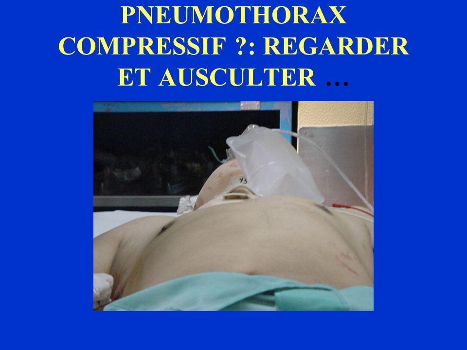 PNEUMOTHORAX COMPRESSIF : REGARDER ET AUSCULTER …