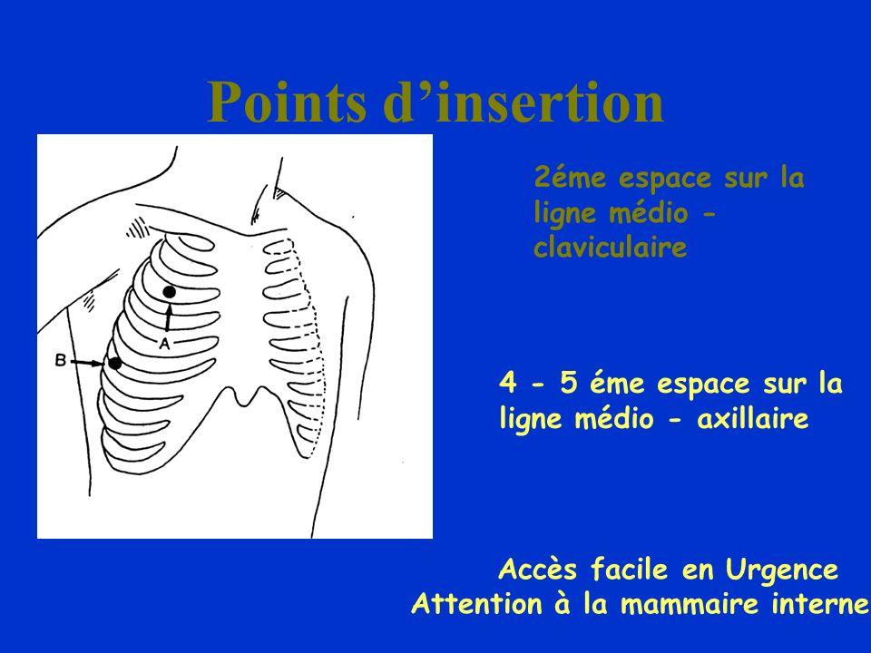 Points d'insertion 2éme espace sur la ligne médio - claviculaire