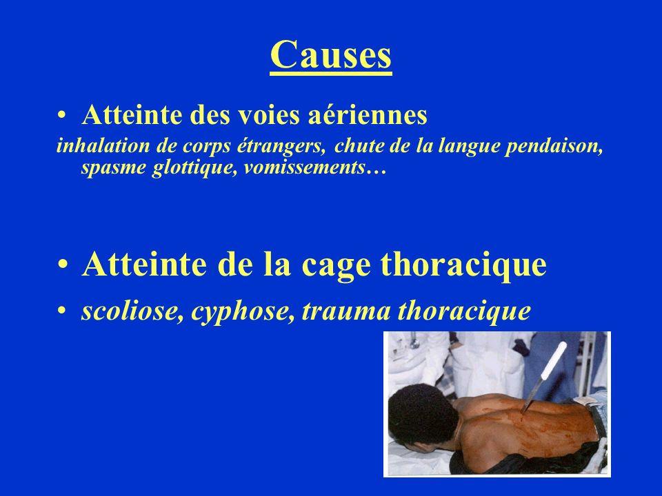 Causes Atteinte de la cage thoracique Atteinte des voies aériennes