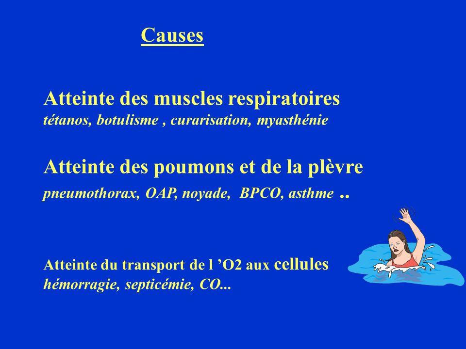 Atteinte des muscles respiratoires