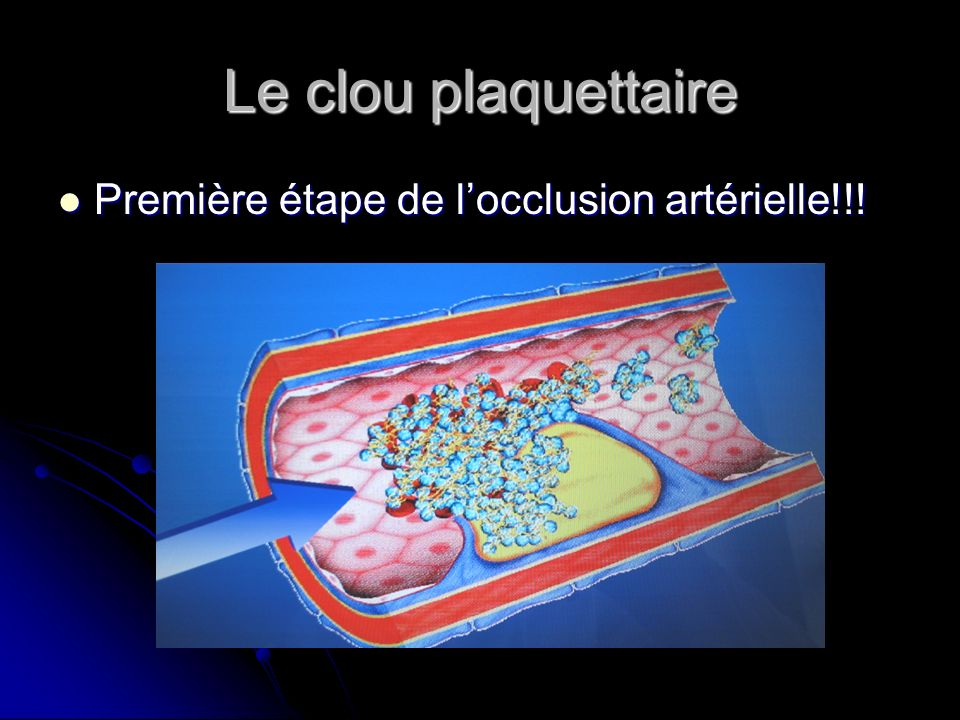 Le clou plaquettaire Première étape de l'occlusion artérielle!!!