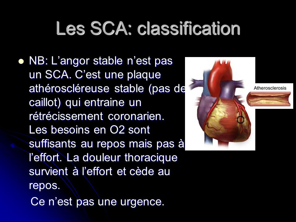 Les SCA: classification