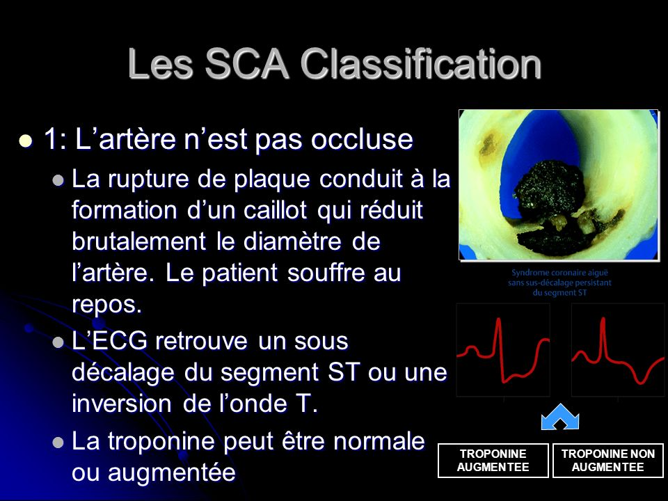 Les SCA Classification