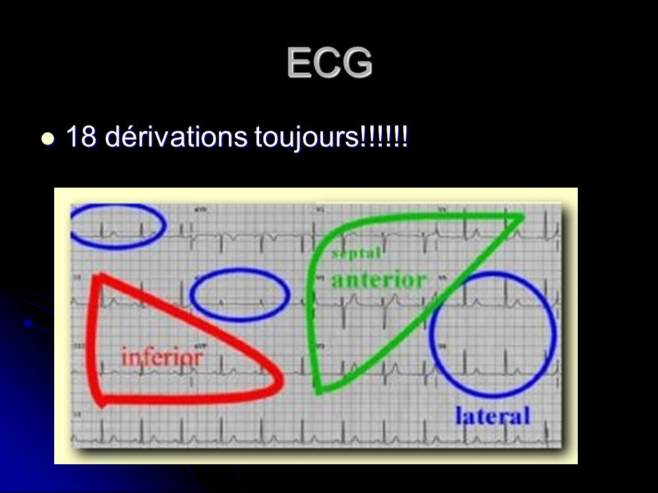 ECG 18 dérivations toujours!!!!!!