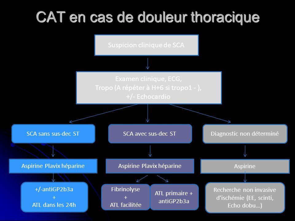 CAT en cas de douleur thoracique