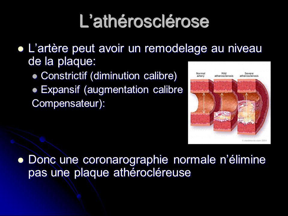 L'athérosclérose L'artère peut avoir un remodelage au niveau de la plaque: Constrictif (diminution calibre)