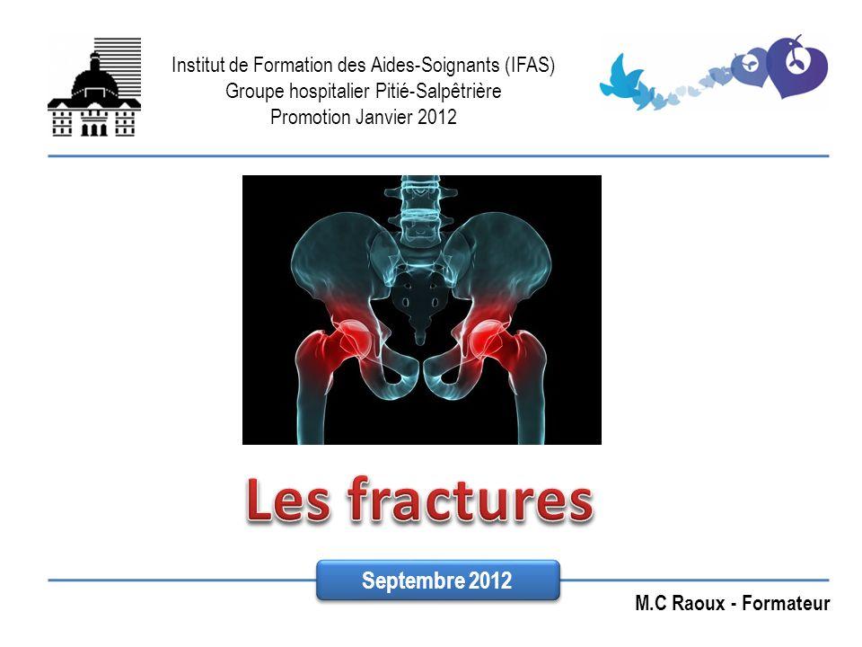 Les fractures Septembre 2012