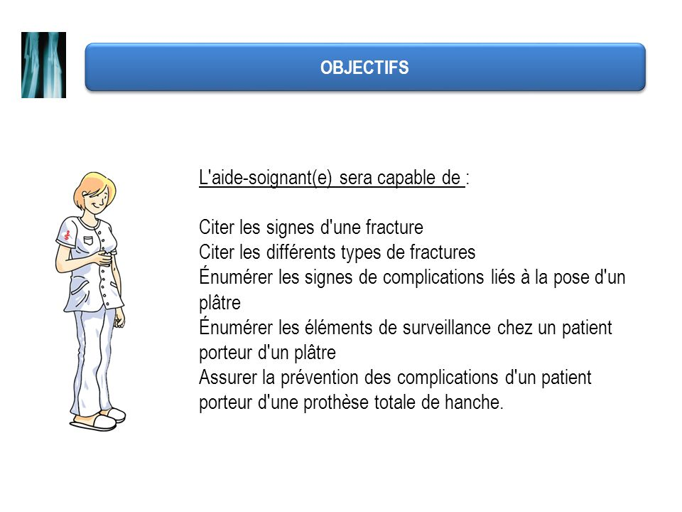 L aide-soignant(e) sera capable de : Citer les signes d une fracture