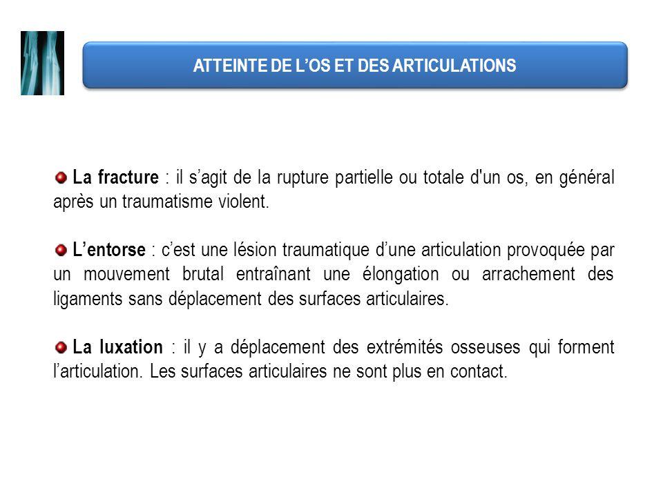 ATTEINTE DE L'OS ET DES ARTICULATIONS