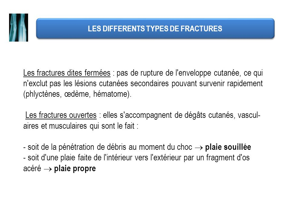 LES DIFFERENTS TYPES DE FRACTURES