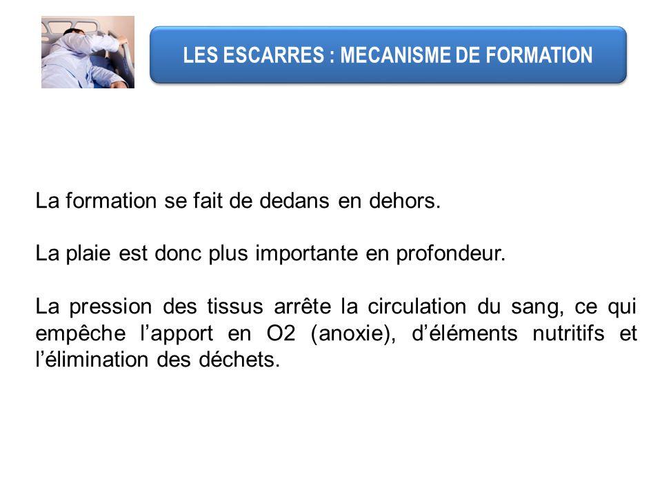 LES ESCARRES : MECANISME DE FORMATION