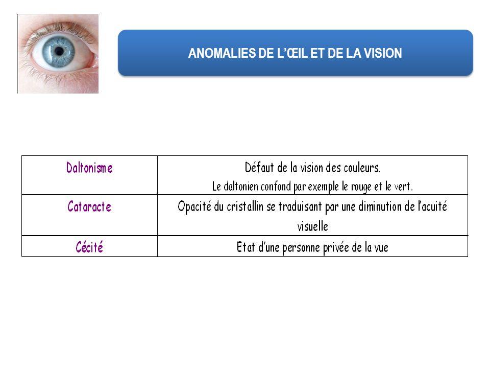 ANOMALIES DE L'ŒIL ET DE LA VISION