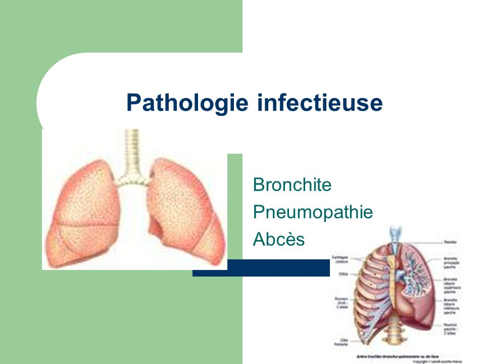 Pathologie infectieuse