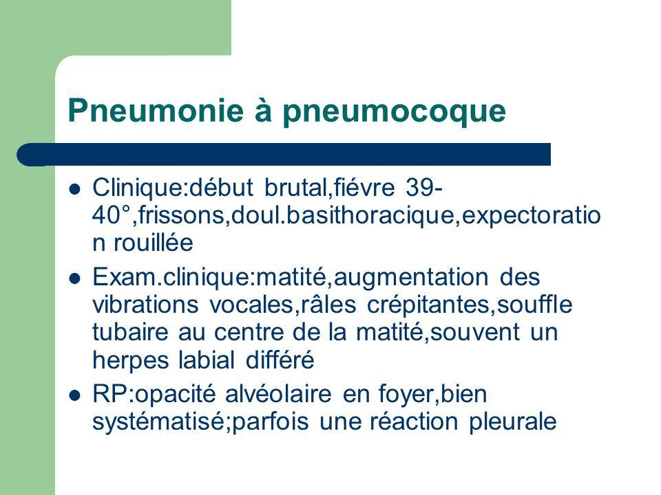 Pneumonie à pneumocoque