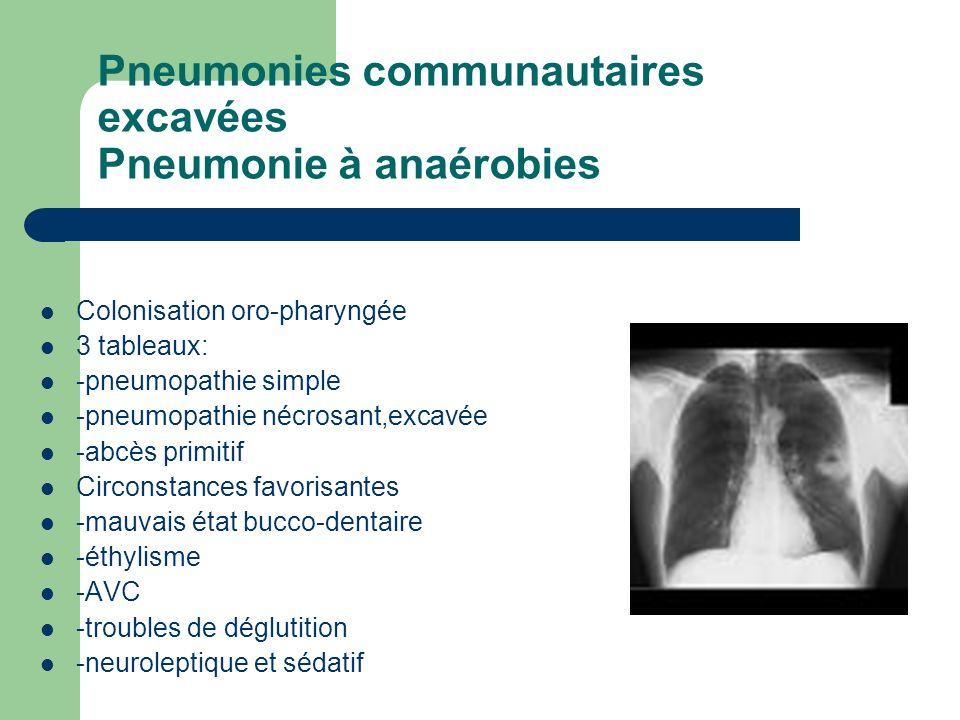 Pneumonies communautaires excavées Pneumonie à anaérobies