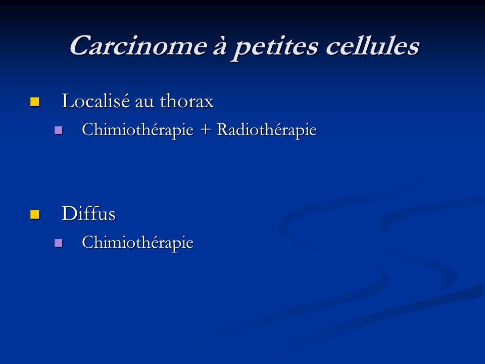 Carcinome à petites cellules