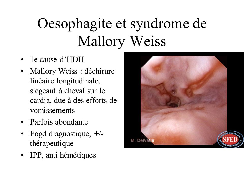 Oesophagite et syndrome de Mallory Weiss