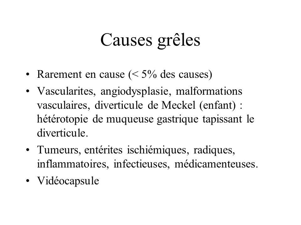 Causes grêles Rarement en cause (< 5% des causes)