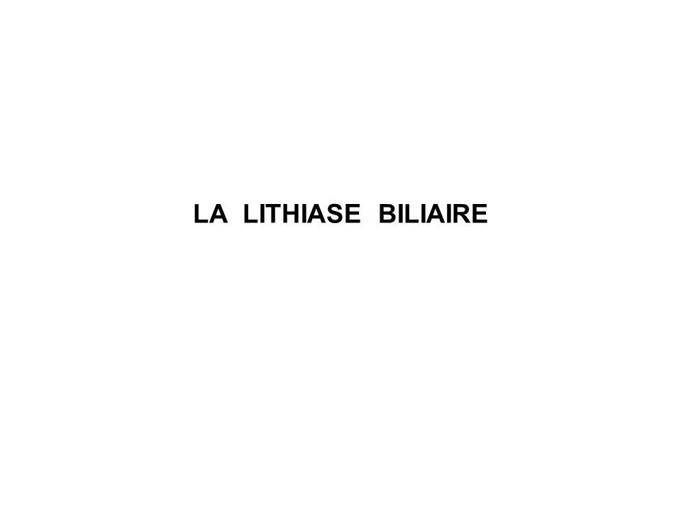 LA LITHIASE BILIAIRE