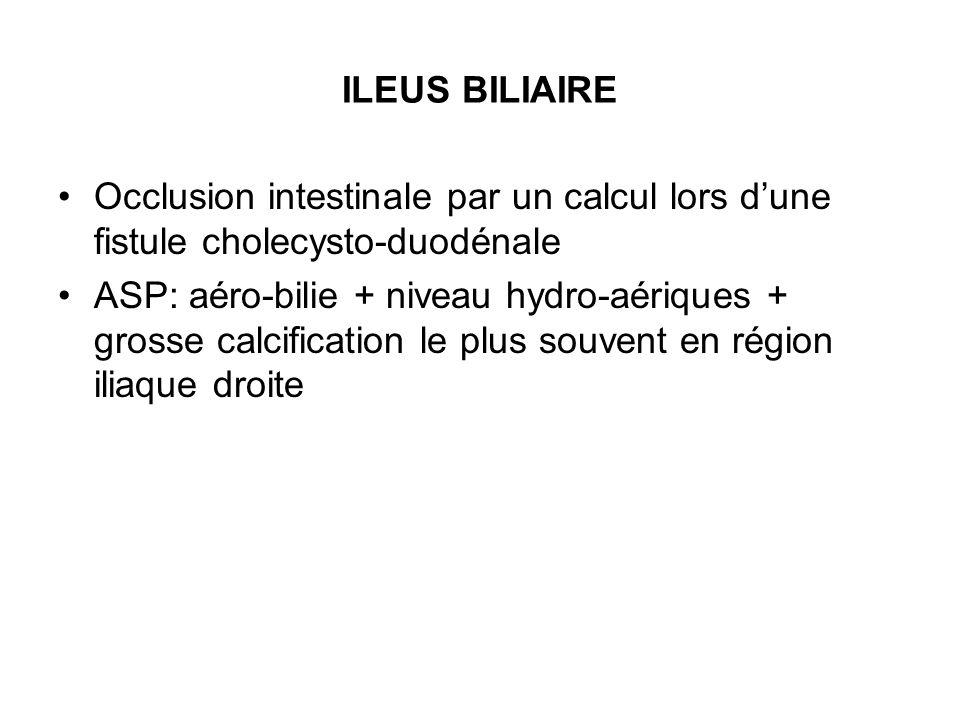 ILEUS BILIAIRE Occlusion intestinale par un calcul lors d'une fistule cholecysto-duodénale.