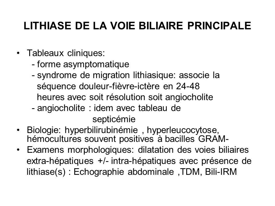 LITHIASE DE LA VOIE BILIAIRE PRINCIPALE
