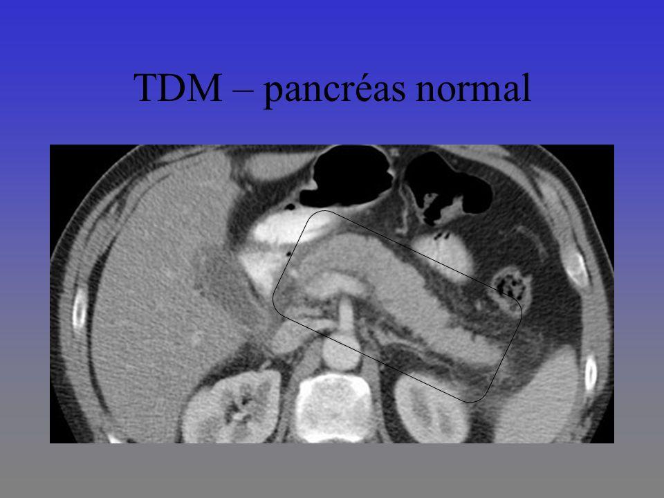 TDM – pancréas normal