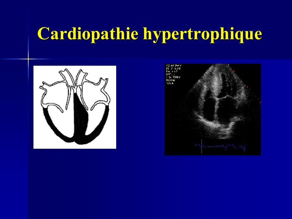 Cardiopathie hypertrophique