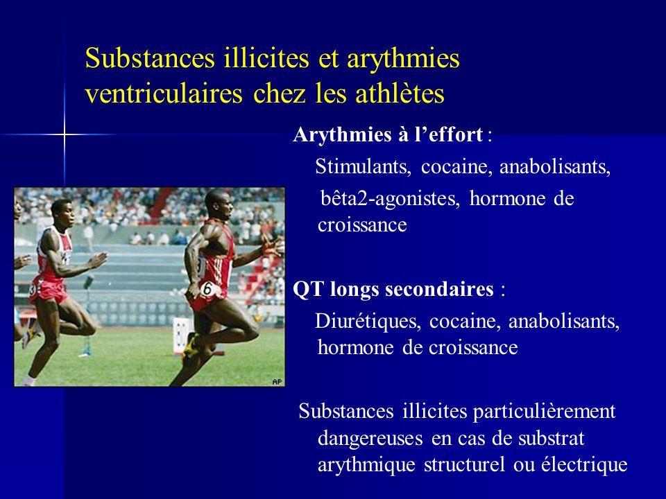 Substances illicites et arythmies ventriculaires chez les athlètes