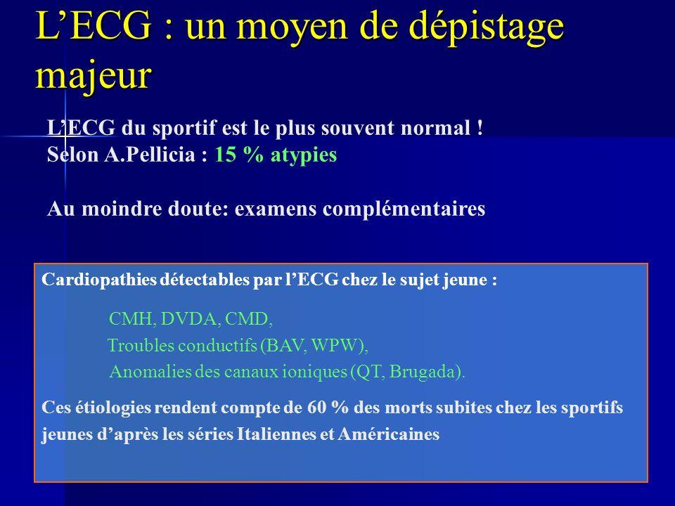 L'ECG : un moyen de dépistage majeur