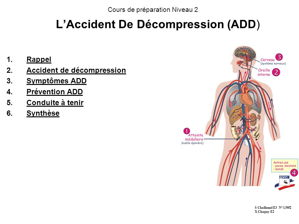 L'Accident De Décompression (ADD)
