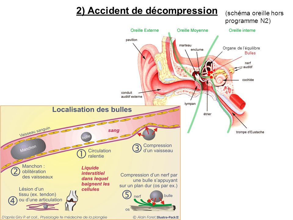 2) Accident de décompression