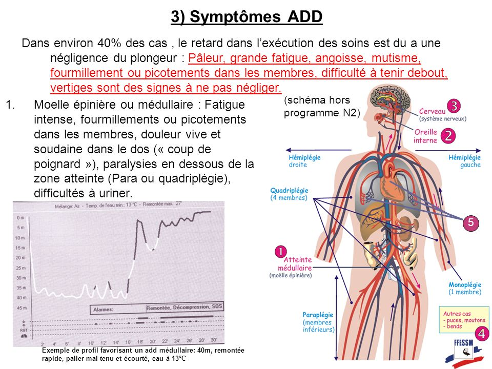 3) Symptômes ADD