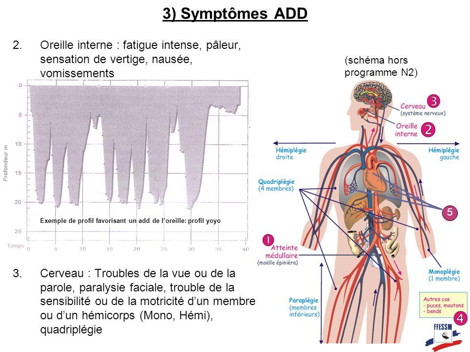 3) Symptômes ADD Oreille interne : fatigue intense, pâleur, sensation de vertige, nausée, vomissements.