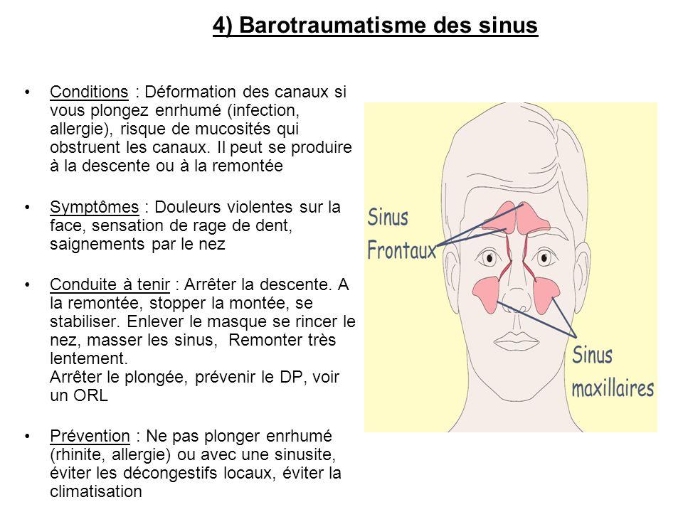 4) Barotraumatisme des sinus