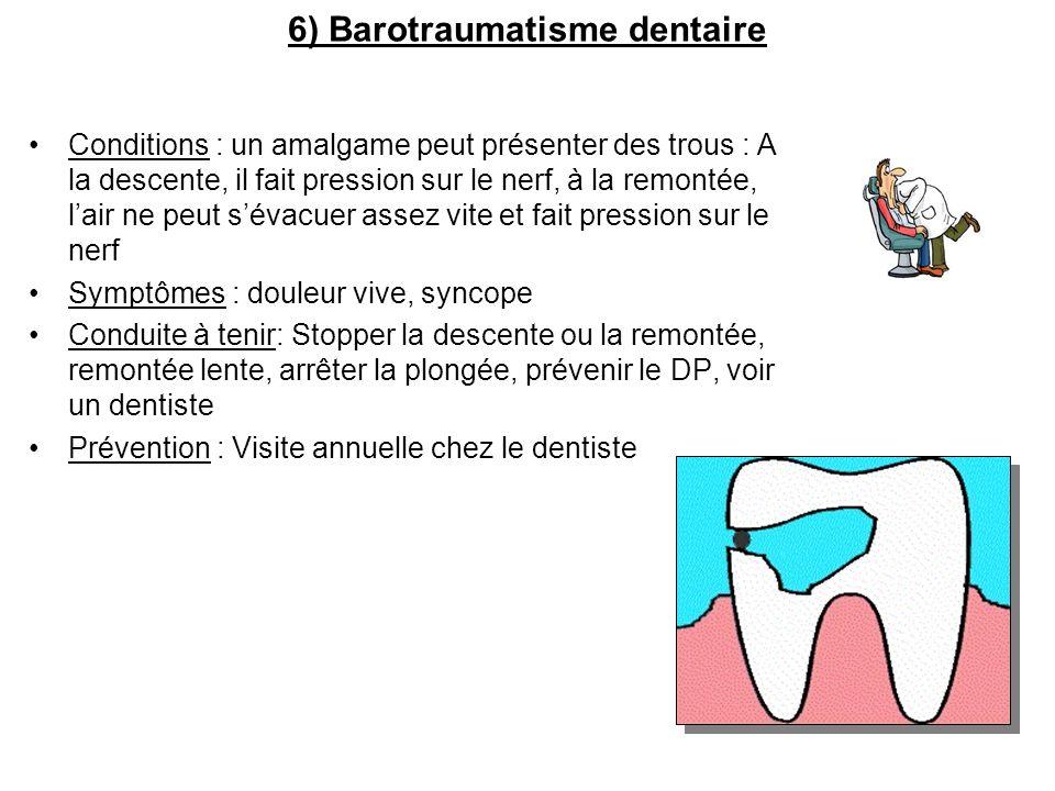 6) Barotraumatisme dentaire