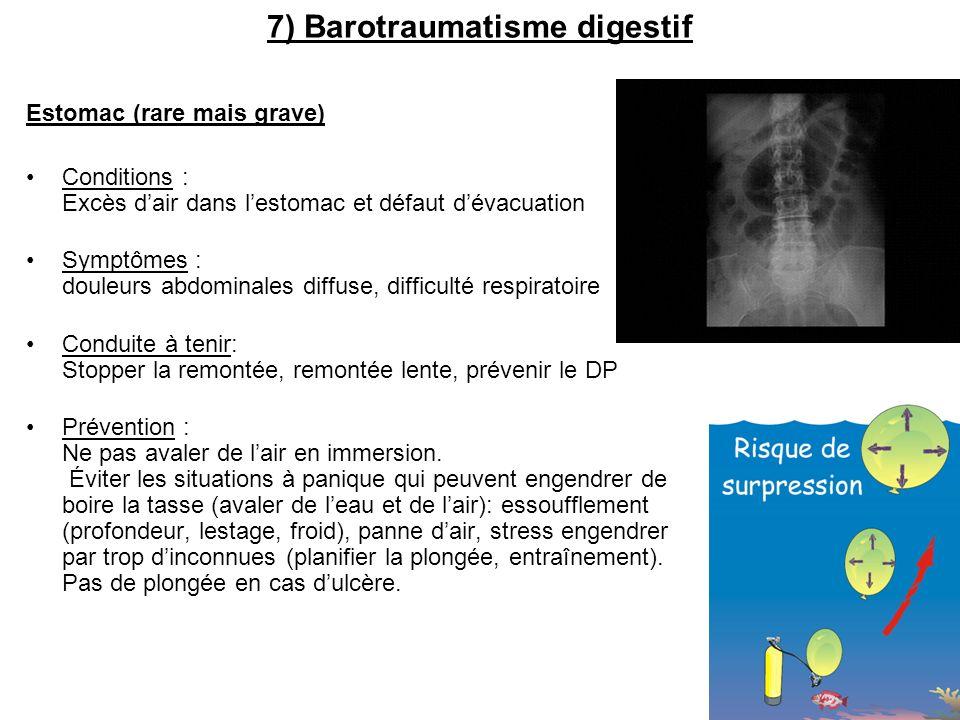 7) Barotraumatisme digestif