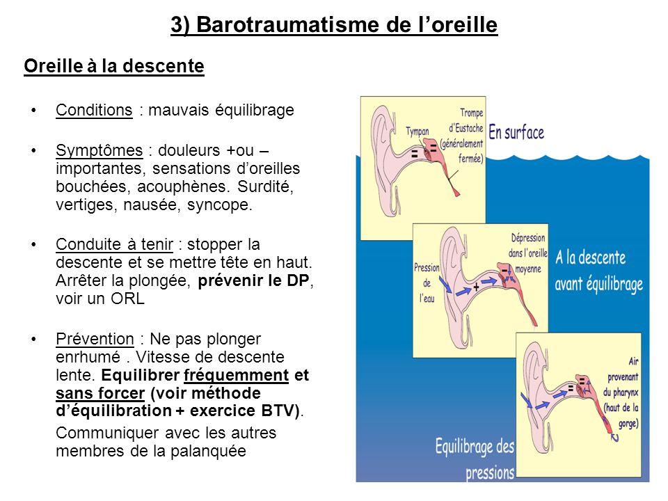 3) Barotraumatisme de l'oreille