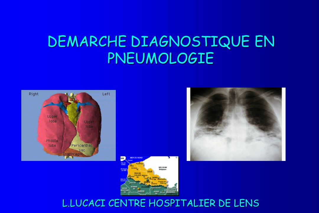 DEMARCHE DIAGNOSTIQUE EN PNEUMOLOGIE L