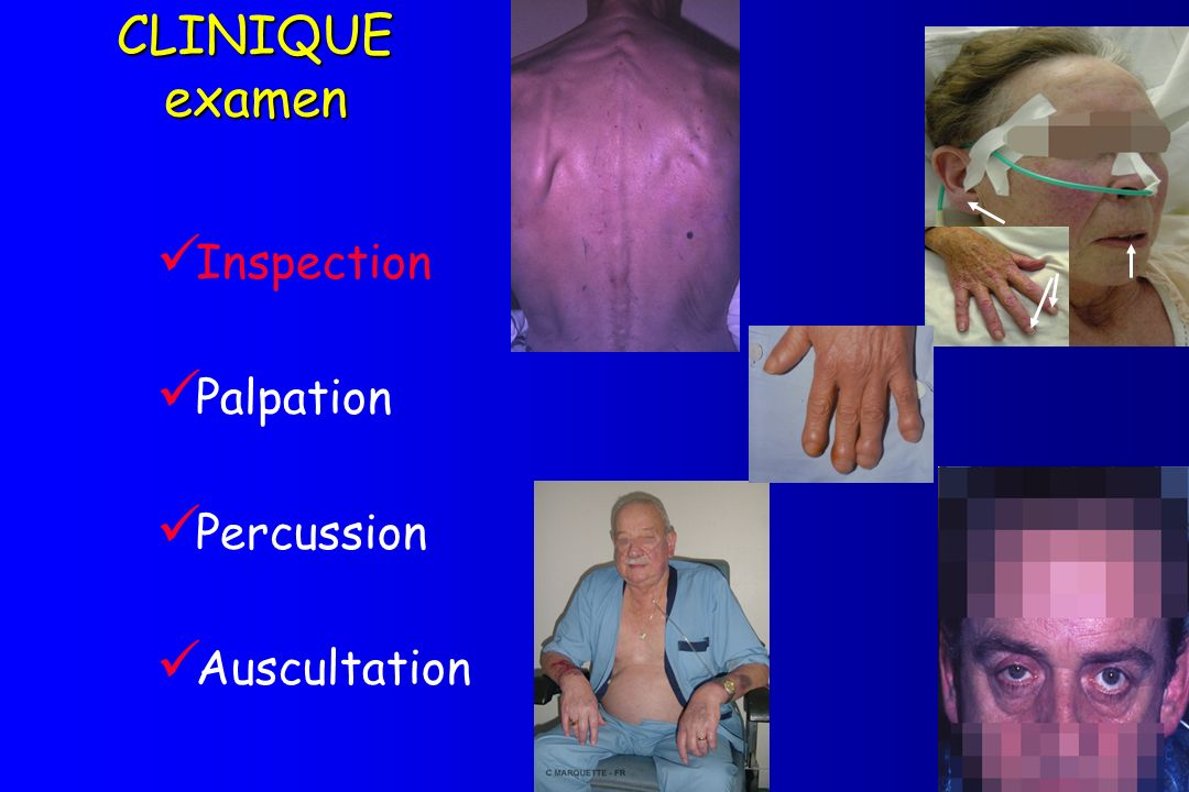CLINIQUE examen Inspection Palpation Percussion Auscultation