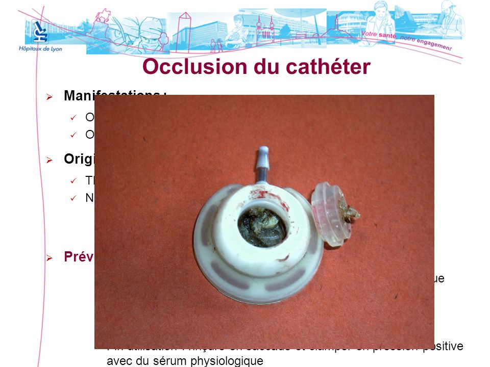 Occlusion du cathéter Manifestations : Origine : Prévention :