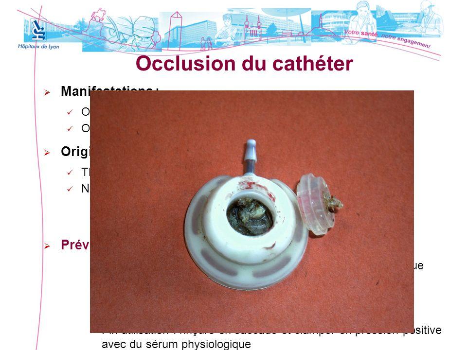 Occlusion du cathéter Manifestations : Origine : Prévention :
